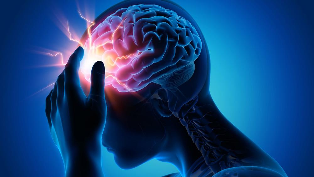 migraine attack